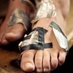 Kojų pūslės: kad pleistras laikytų